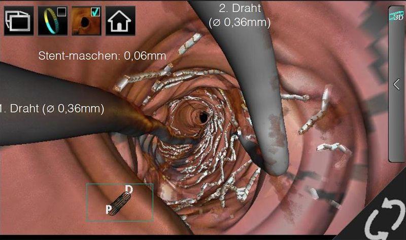 3D-Darstellung während eines Kathetereingriffs mit OCT-Unterstützung